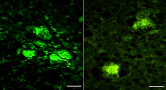 Thioflavin S positive amyloid plaques in the hippocampus (left) and cortex of lab mice inoculated with the artificial human prion, rhuPrion. Image credit: Kim et al, doi: 10.1038/s41467-018-04584-z.